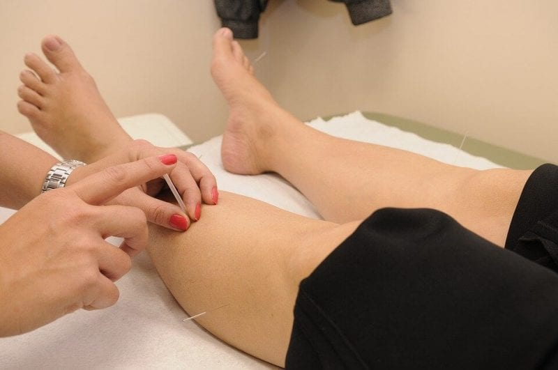6 Great Health Benefits of Acupuncture Treatment