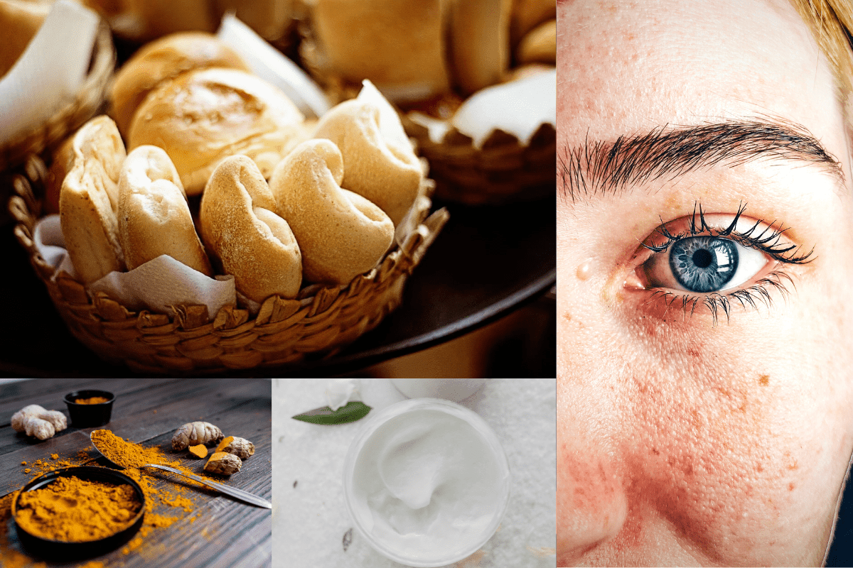 50 Natural Home Remedies Treatment For Fungal Skin Infections