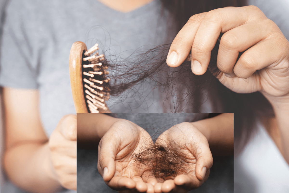 Saw Palmetto for Hair – Can it stop Hair loss? | Roncuvita